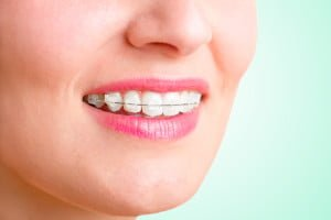 Tooth coloured Ceramic Clear Braces Gold Coast