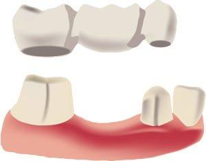 Dental Bridge Gold Coast