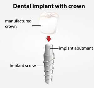 Cheap dental implant with crown Gold Coast