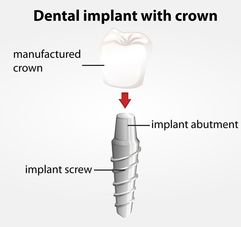 Dental Implant With Crown Smilecentre
