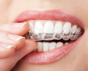 cheap teeth with whitening tray gold coast