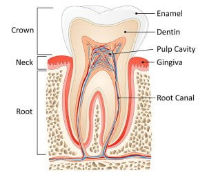 Cheap Root Canal Gold Coast