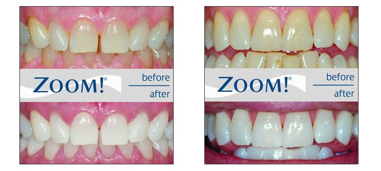 Cheap Teeth Whitening (Zoom2) Gold Coast