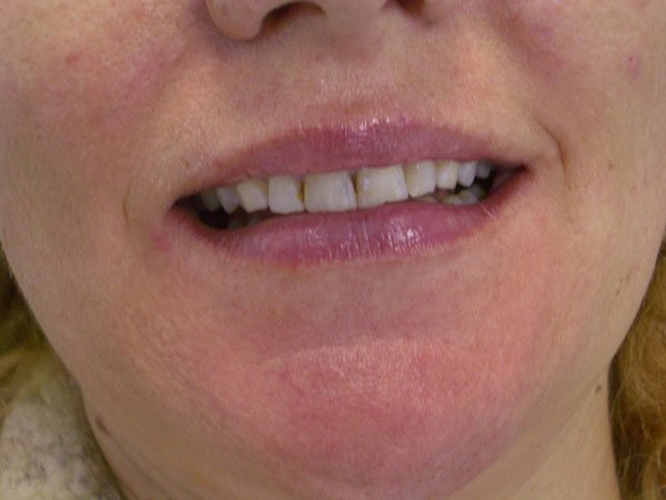 Dental Veneers Gold Coast