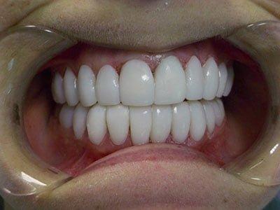 Picture16 Smilecentre