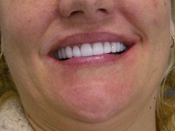 Gold Coast Cosmetic Veneers