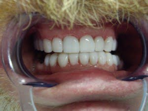 Veneers Gold Coast
