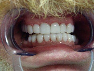 Cosmetic Dentist Gold Coast Smilecentre