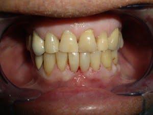 Patient 15 After