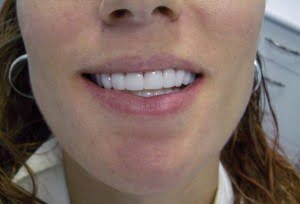 Beautiful Veneers Gold Coast