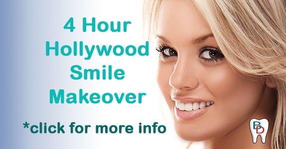 Beautiful Dental Veneers Gold Coast