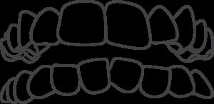 Teeth Crowding Invisalign
